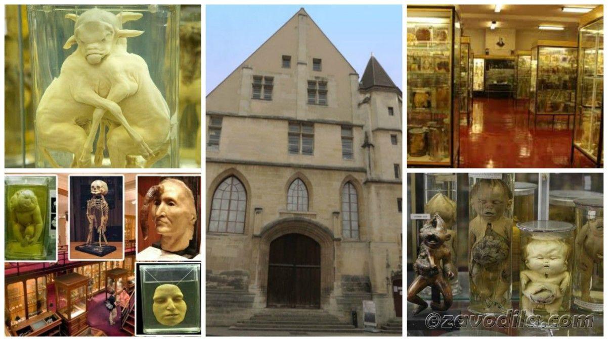 Самые страшные и жуткие музеи мира, музей Дюпюитрена, Париж, Франция